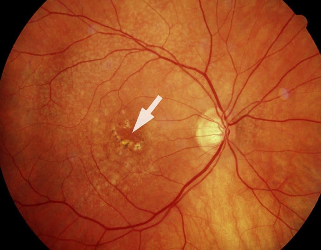 """Ангиопатия сосудов сетчатки глаза - """"здоровое око"""""""