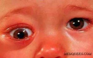 Слезится глаз у ребёнка: возможные причины и пути решения проблемы