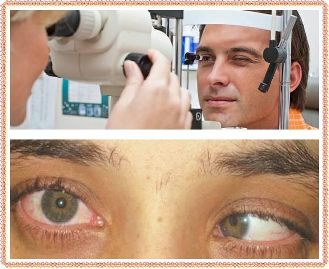 Как убрать это надоедливое двоение в глазах? способы лечения диплопии