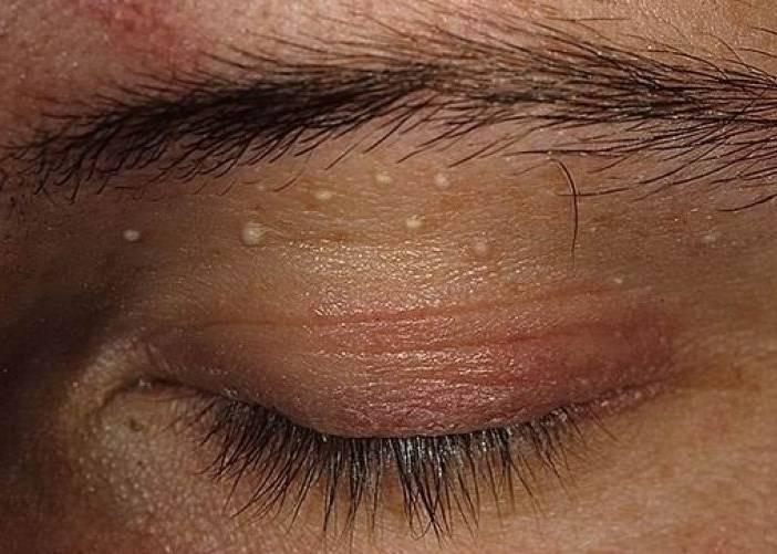 Жировики на веках глаз: причины, методы лечения, можно ли избавиться при помощи народных средств, фото