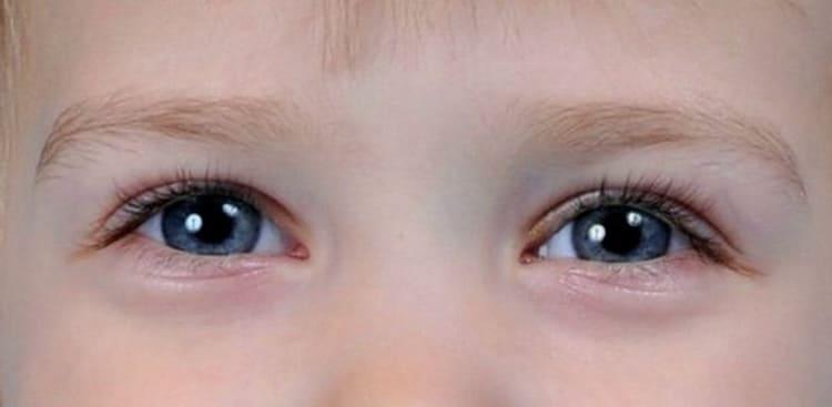Доктор комаровский о синяках под глазами у ребенка