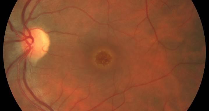 Разрыв сетчатки глаза: причины, лечение, операция