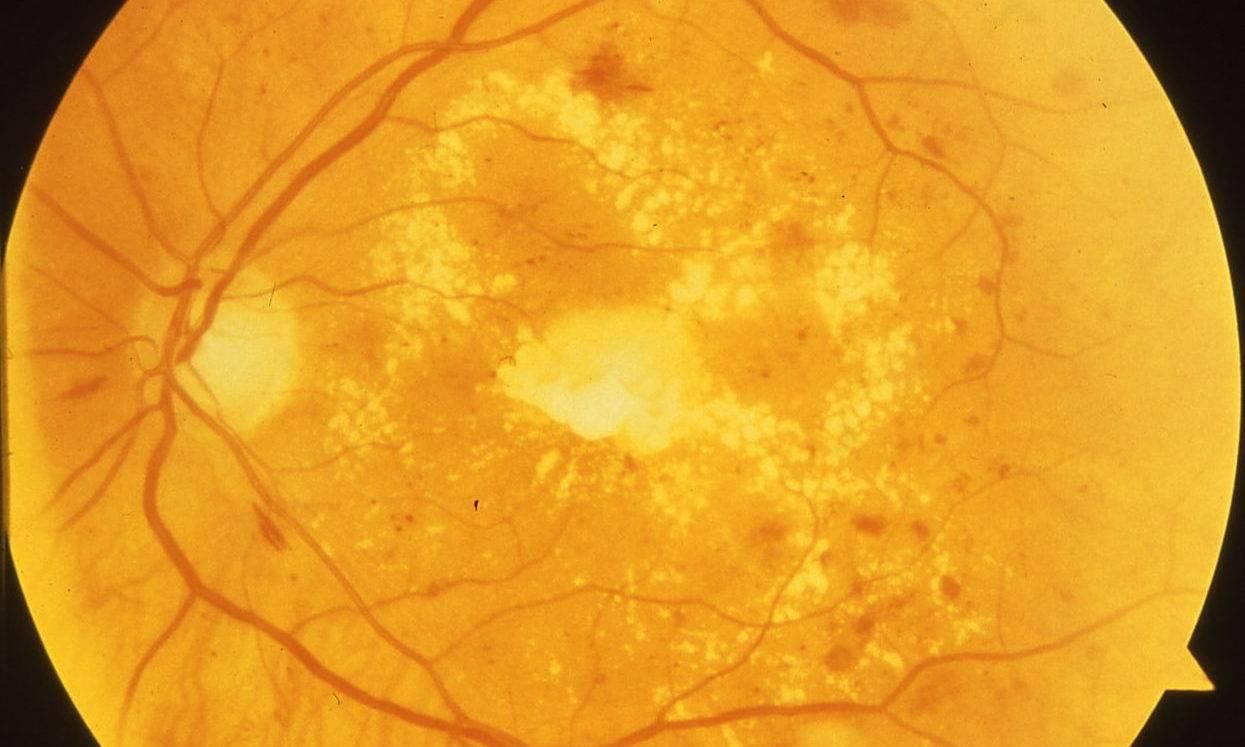 Макулодистрофия сетчатки глаза - лечение и симптомы заболевания