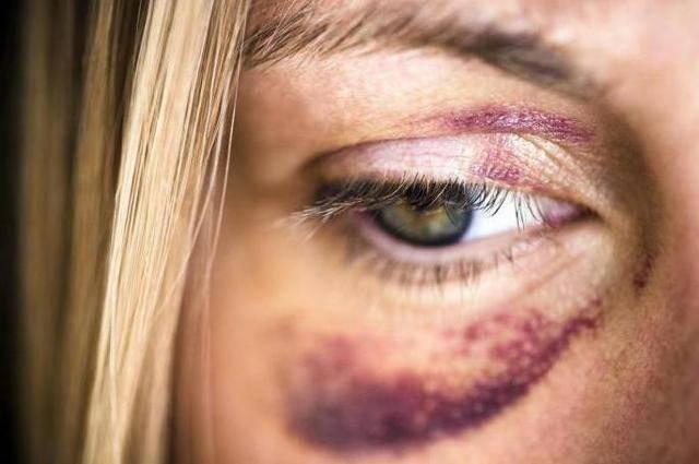 Лопнул сосуд на лице (под глазом): что делать и как убрать?