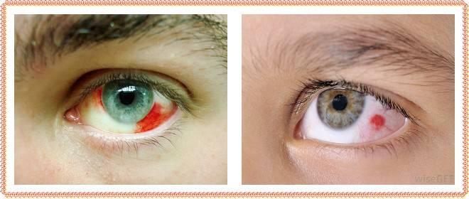 Заболевания наружной оболочки глаза. склерит и эписклерит. диагностика и лечение