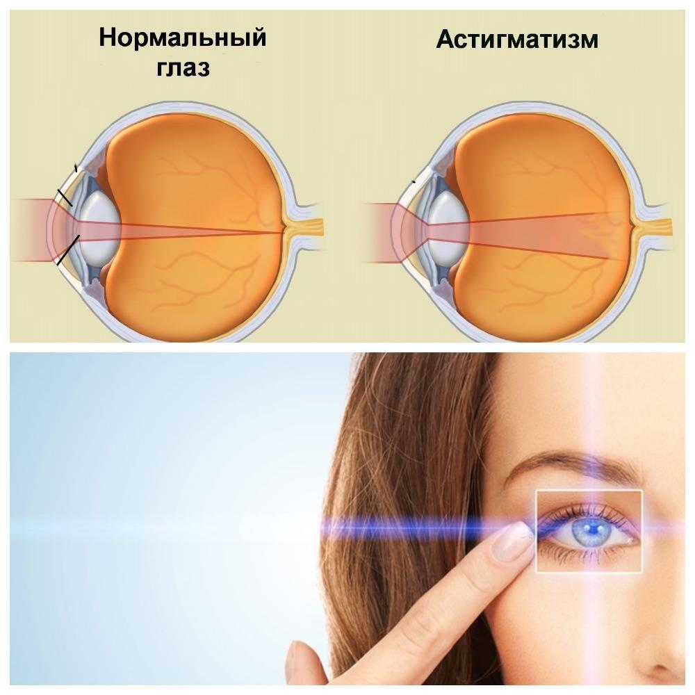 Очки при астигматизме: правила подбора, как привыкнуть к очкам