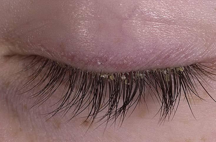 Грибковая инфекция глаз: симптомы и лечение