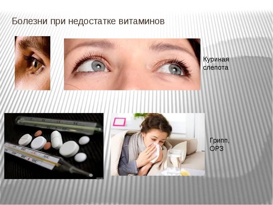 Куриная слепота — профилактика и лечение — народный доктор
