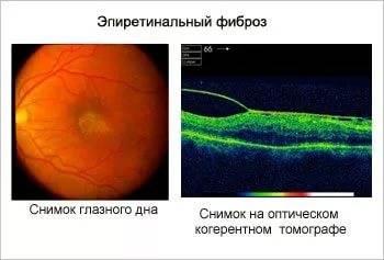 Фиброз сетчатки глаза - что это такое, симптоматика проявления, советы специалистов