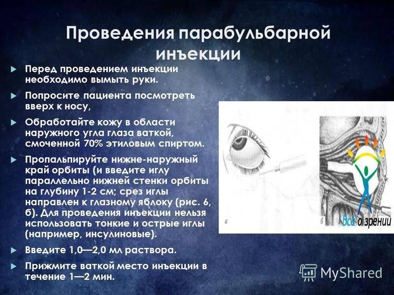 Укол в глаз озурдекс: инструкция по применению