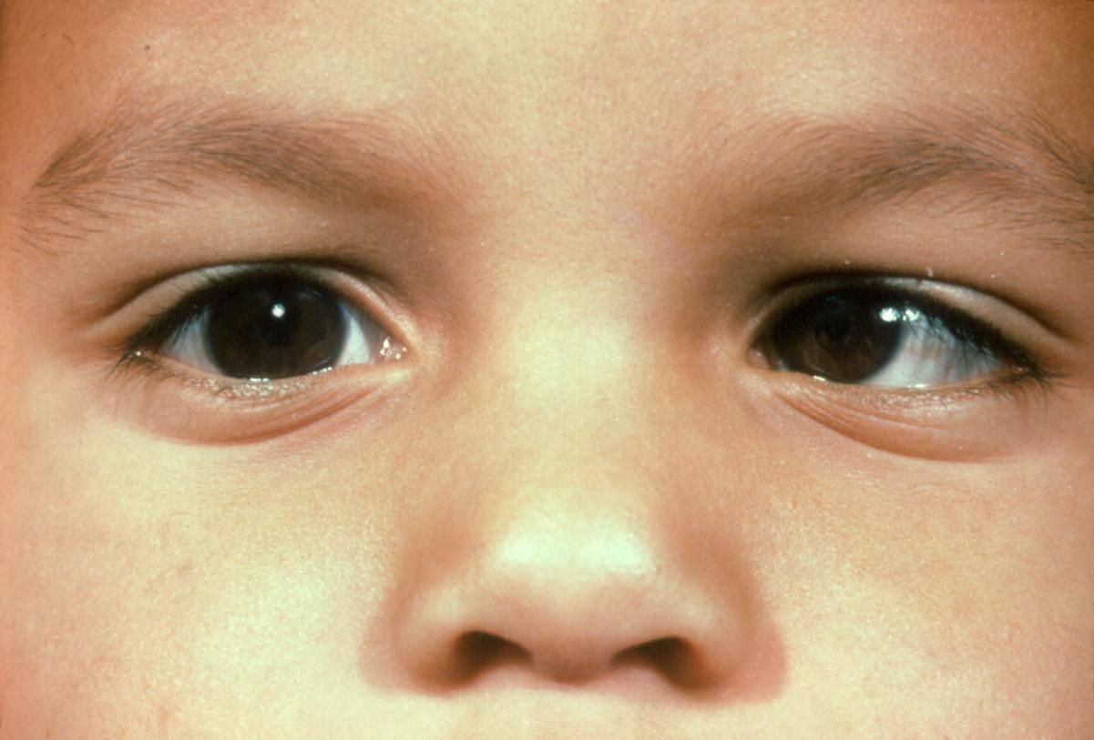 Сходящееся содружественное косоглазие у детей: причины заболевания и методы борьбы с ним