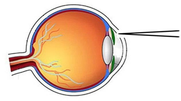 Лазерная иридэктомия (иридотомия): лечение глаукомы лазером, хирургическим методом, а также трабекулопластика