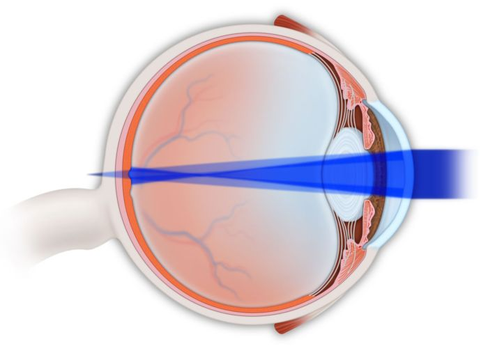 Миопический астигматизм: что это такое, лечение обоих глаз