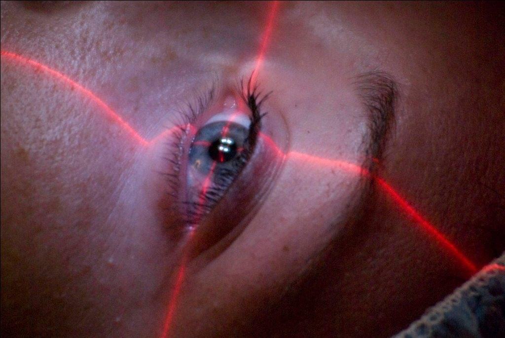 Дальнозоркость после лазерной коррекции