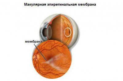 Эпиретинальный фиброз глаза: причины, симптомы, диагностика, методы лечения