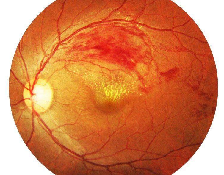 Причины сужения сосудов глазного дна
