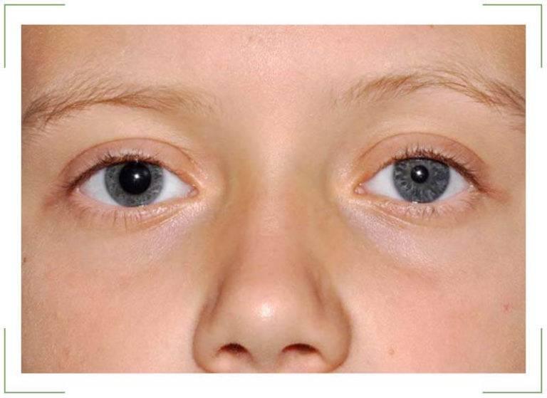 Расширенные зрачки у ребенка - причины всегда широких зрачков