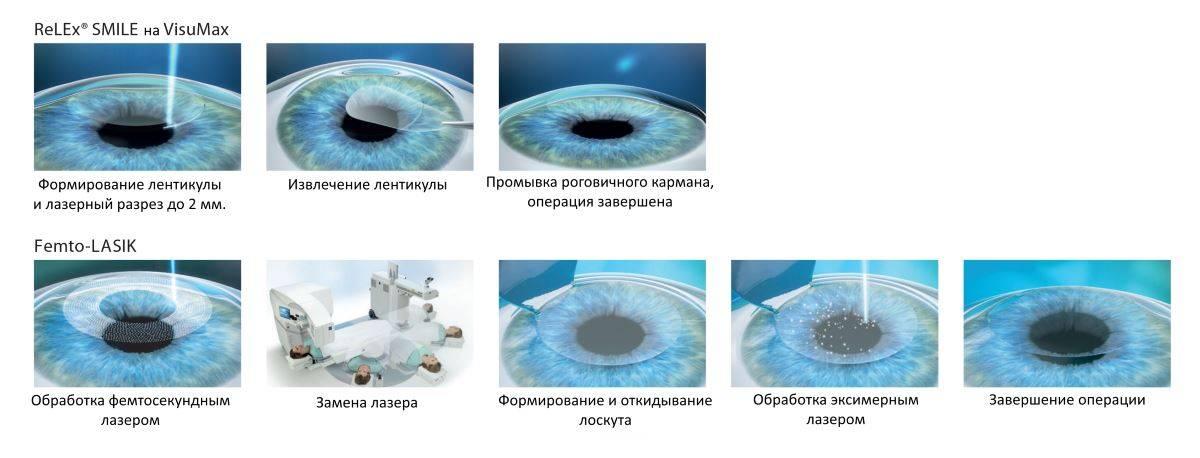 Бесплатная лазерная коррекция зрения по омс