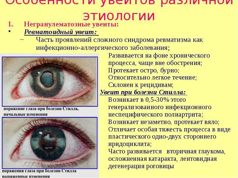 Полный список глазных болезней у человека — названия, симптомы, описания