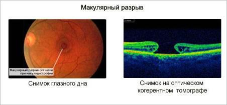 Что такое макулярный разрыв сетчатки