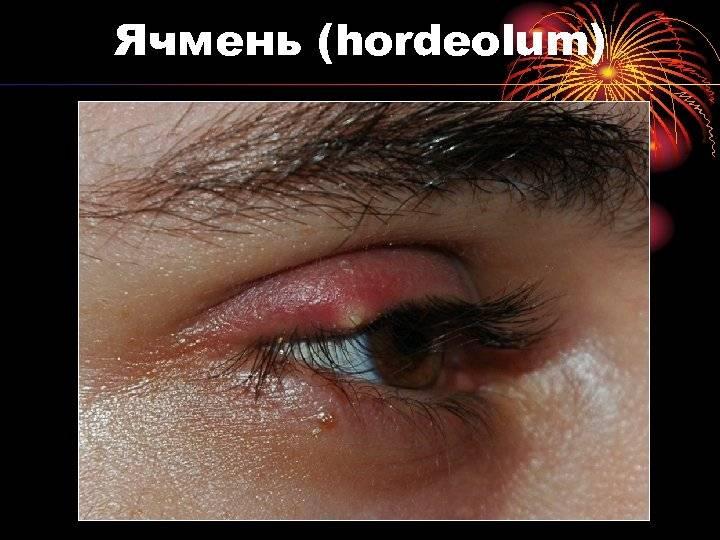 Сколько проходит ячмень на глазу: как долго длится заболевание, может ли заболевание исчезнуть само, через сколько дней необходимо обратиться к врачу