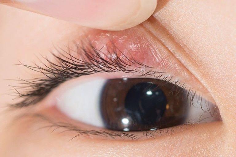 Ячмень на глазу: что делать на ранней стадии, как избавиться в домашних условиях, медикаментозное лечение