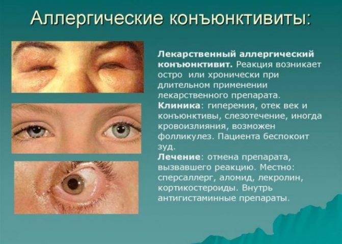 Боль в глазах при движении глазного яблока: причины и лечение в глазницах, при нажатии, надавливании, повороте