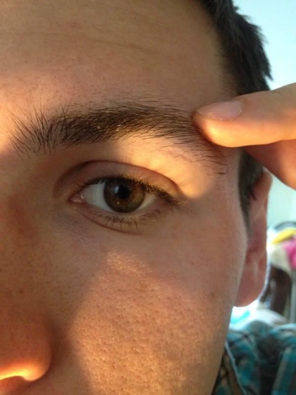 Болит бровь над глазом при нажатии: причины, диагностика, лечение
