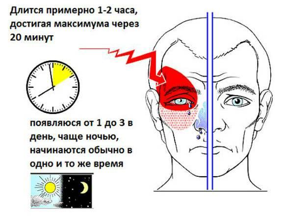 Ощущение давления на глаза