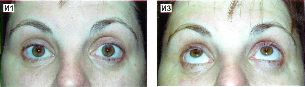 Офтальмогипертензия глаз: что это, лечение, симптомы, причины, осложнения и профилактика