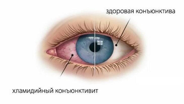"""Конъюнктивит: причины, лечение, профилактика - """"здоровое око"""""""