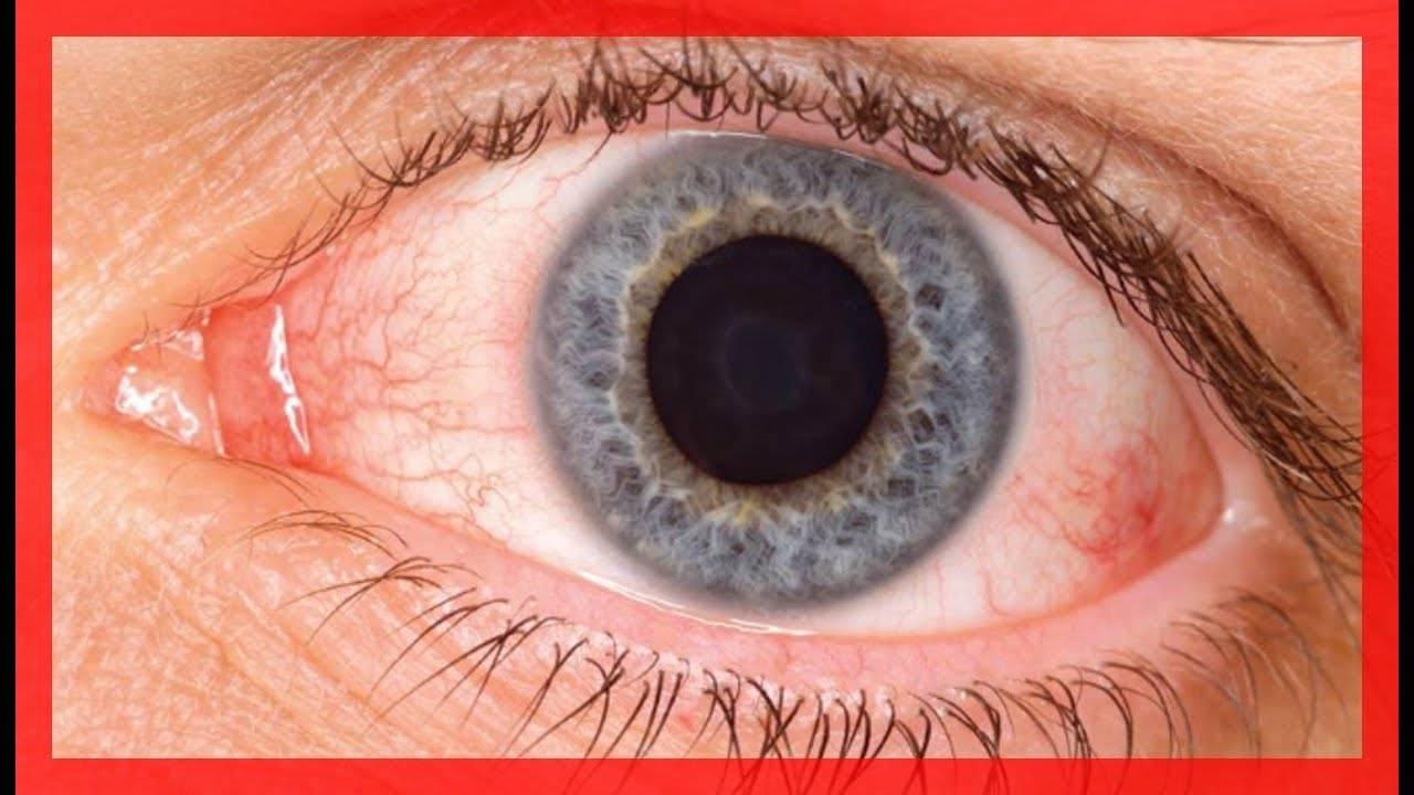 Синдром сухого глаза: симптомы и лечение народными средствами