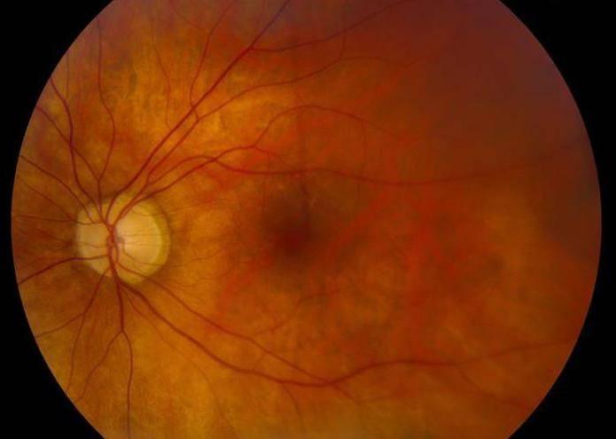 Отслоение сетчатки глаза с разрывом – причины развития и лечение — глаза эксперт
