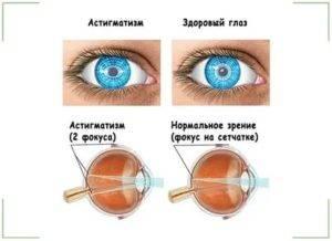Что такое астенопия глаз
