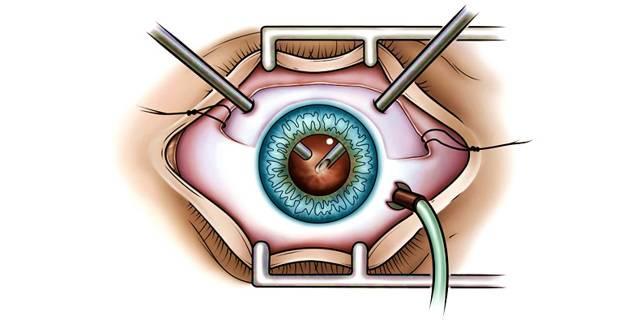 Витрэктомия (витреоэктомия) глаза – операция по удалению стекловидного тела – клиника «новый взгляд»