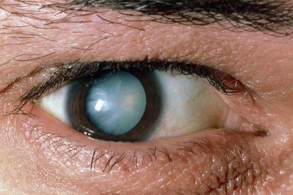 Туман в глазах: причины и лечение на сайте «московская офтальмология»