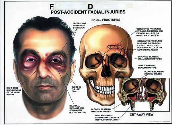 Перелом лицевой кости под глазом