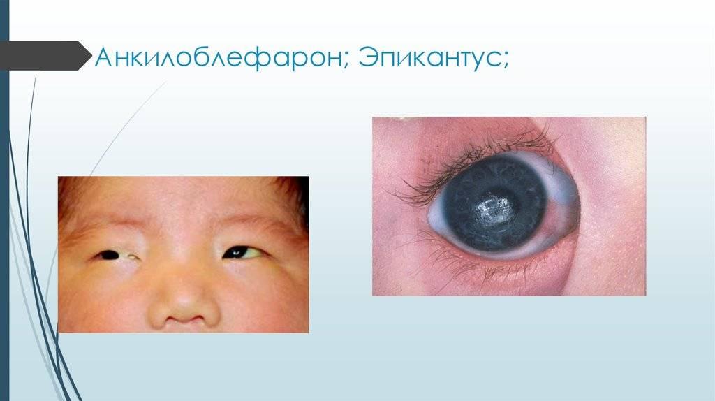 Эпикантус у ребенка, характеристика его образования, лечебные действия и возможные последствия
