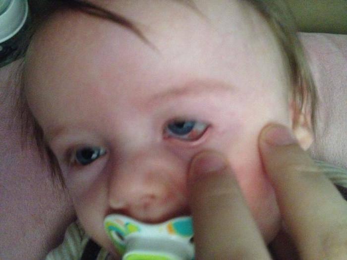 Лопнул сосуд в глазу у ребенка: причины, почему лопаются капилляры у грудничков