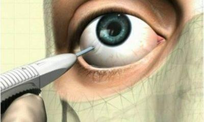 Укол в глаз: как делают, инъекции в глазное яблоко, уколы в висок   мрикрнц.рф
