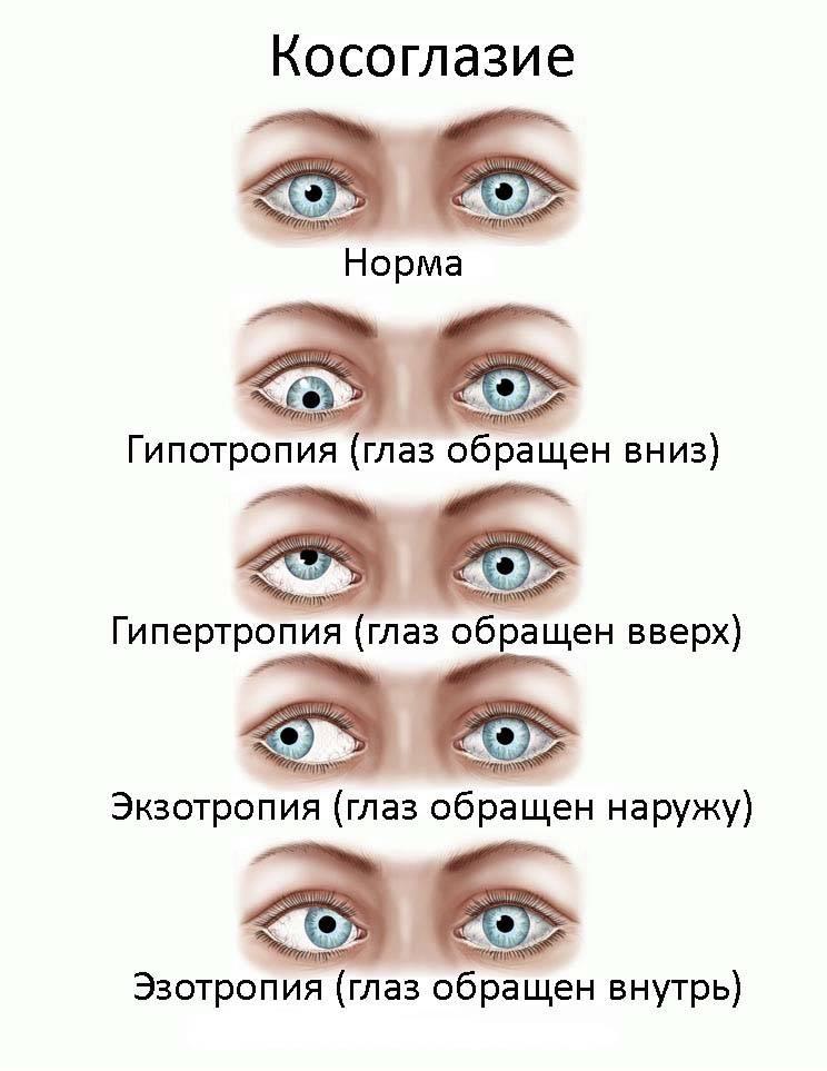 Гетерофория: что это такое, причины развития, симптомы и тактика лечения. гетерофория у детей