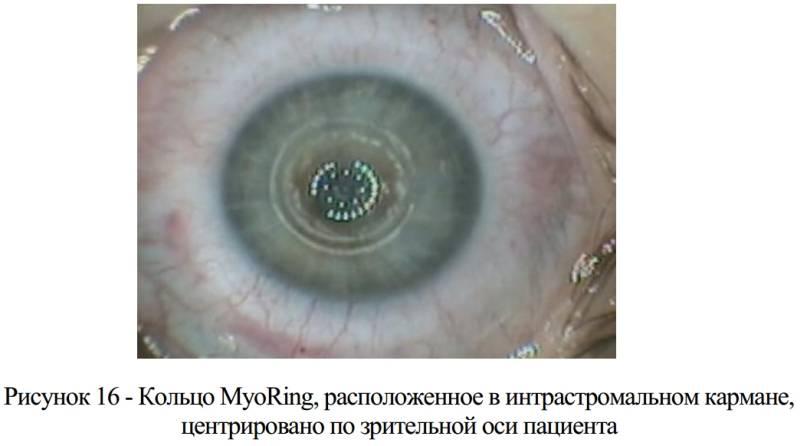 Интрастромальная имплантация кольца myoring