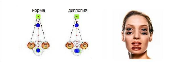 Диплопия - причины развития, симптомы и возможность лечения