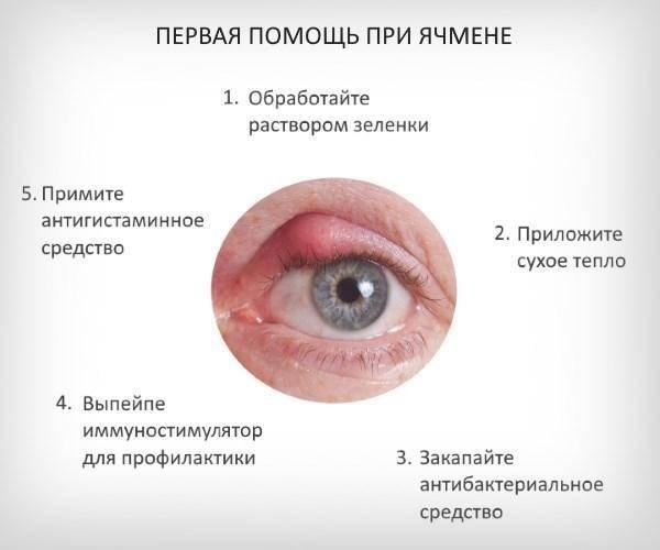 Какой врач лечит ячмень на глазу у взрослого