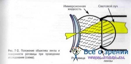 Зеркальная микроскопия роговицы: особенности процедуры