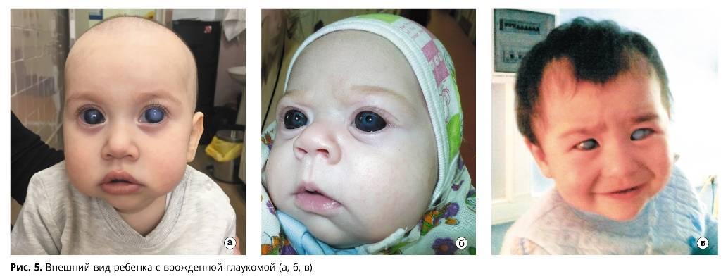 Ребенок выпучивает глаза - причины, опасно ли это