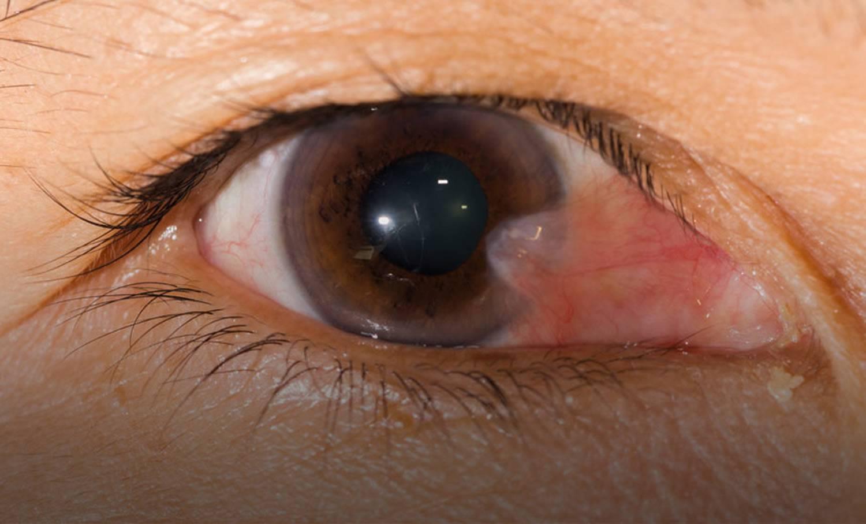 Пленка на глазах утром | ocularhelp