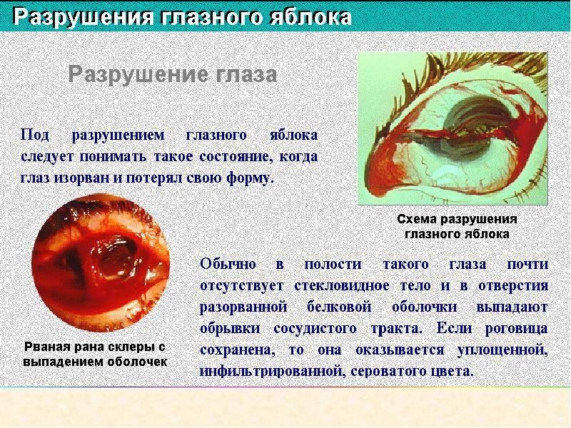 Разрывы глазного яблока — как лечить