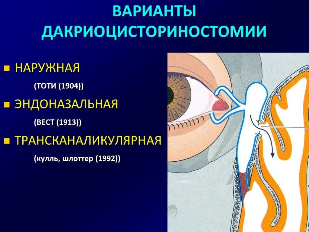 Лазерная дакриоцисториностомия: ход операции, виды и типы
