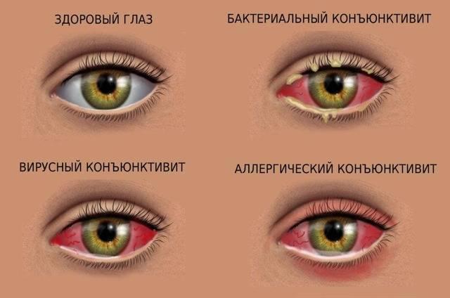 Закисают глаза чем лечить. почему закисают глаза у взрослого